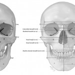Craniometric frontal points and measurements