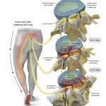 Disc disruption with sciatica