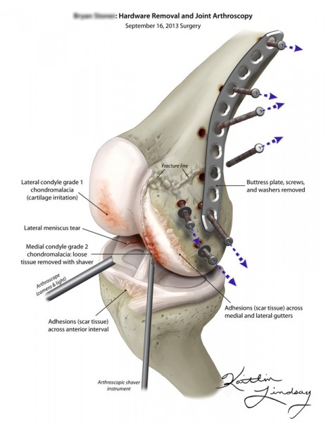 Knee arthroscopy & hardware removal
