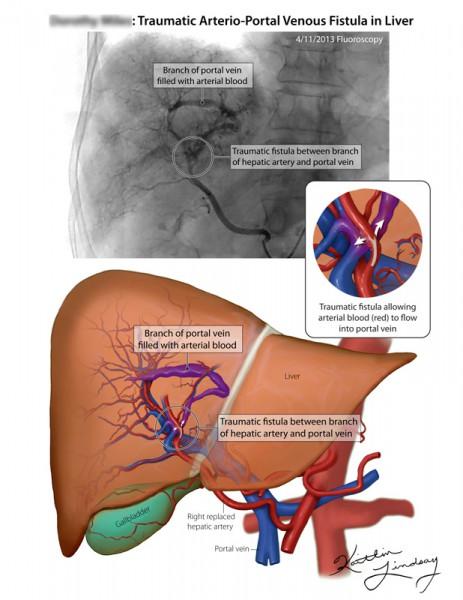 Hepatic arterio-portal venous fistula