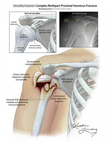Proximal humerus fracture