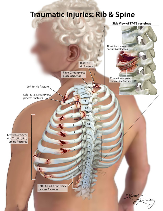 Traumatic rib and spine injuries