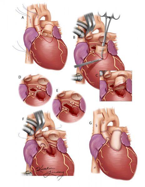 Ross-Konno heart procedure